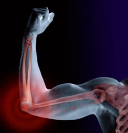 The overuse of your elbow inflames the tendons causing those chronic, painful symptoms.